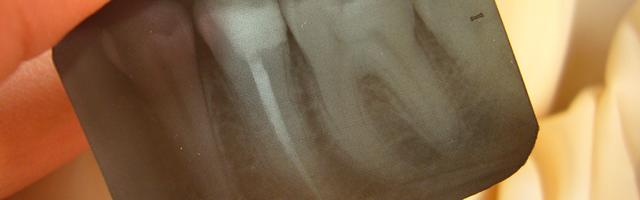 Common misconceptions about root canal treatments