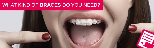 What kind of braces do you need?